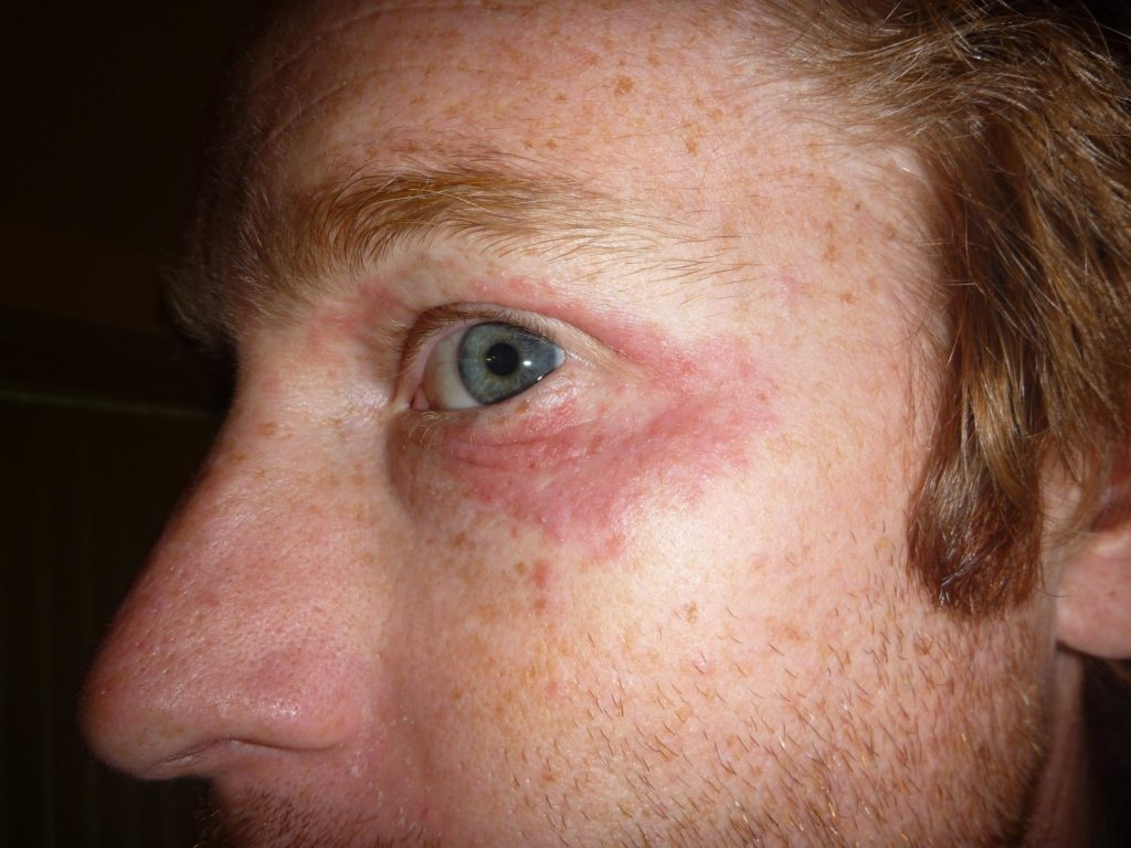 Dermatita seboreica - DClinic